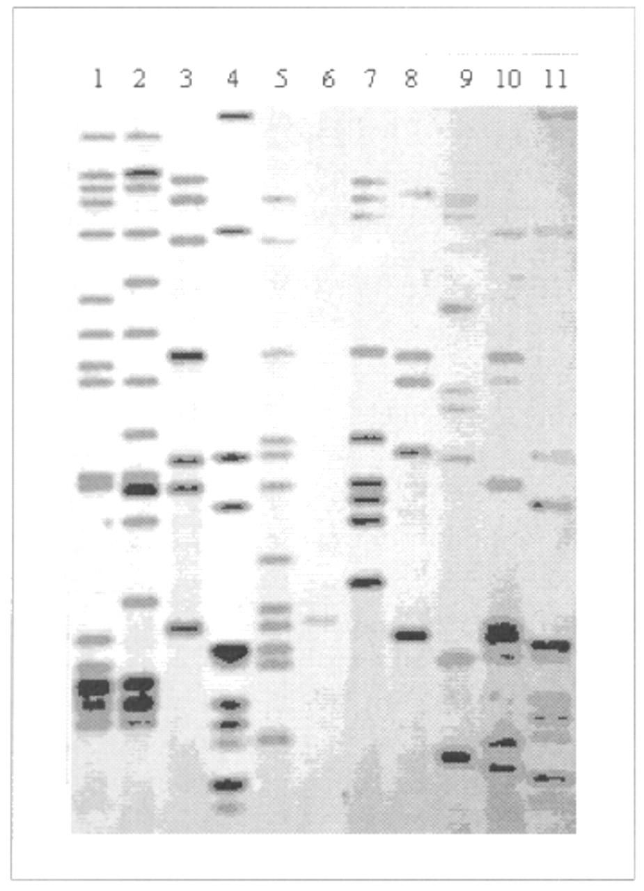 Genetic fingerprinting in the study of tuberculosis