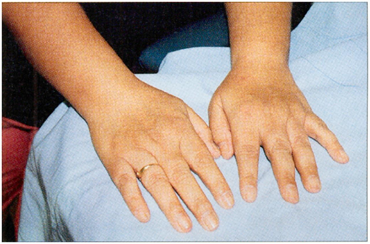 Rheumatology 5 Diagnosis And Management Of Inflammatory Polyarthritis Cmaj