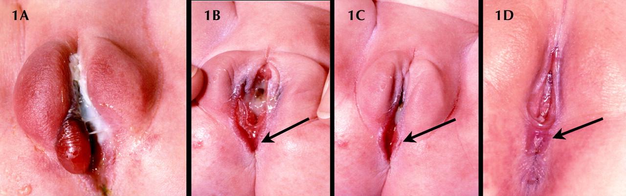 Large clitoris in infant girls