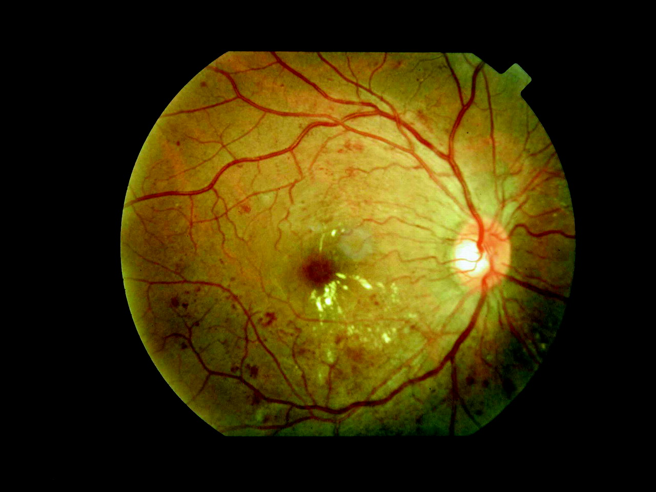 Diabetic Retinopathy Drugs Market
