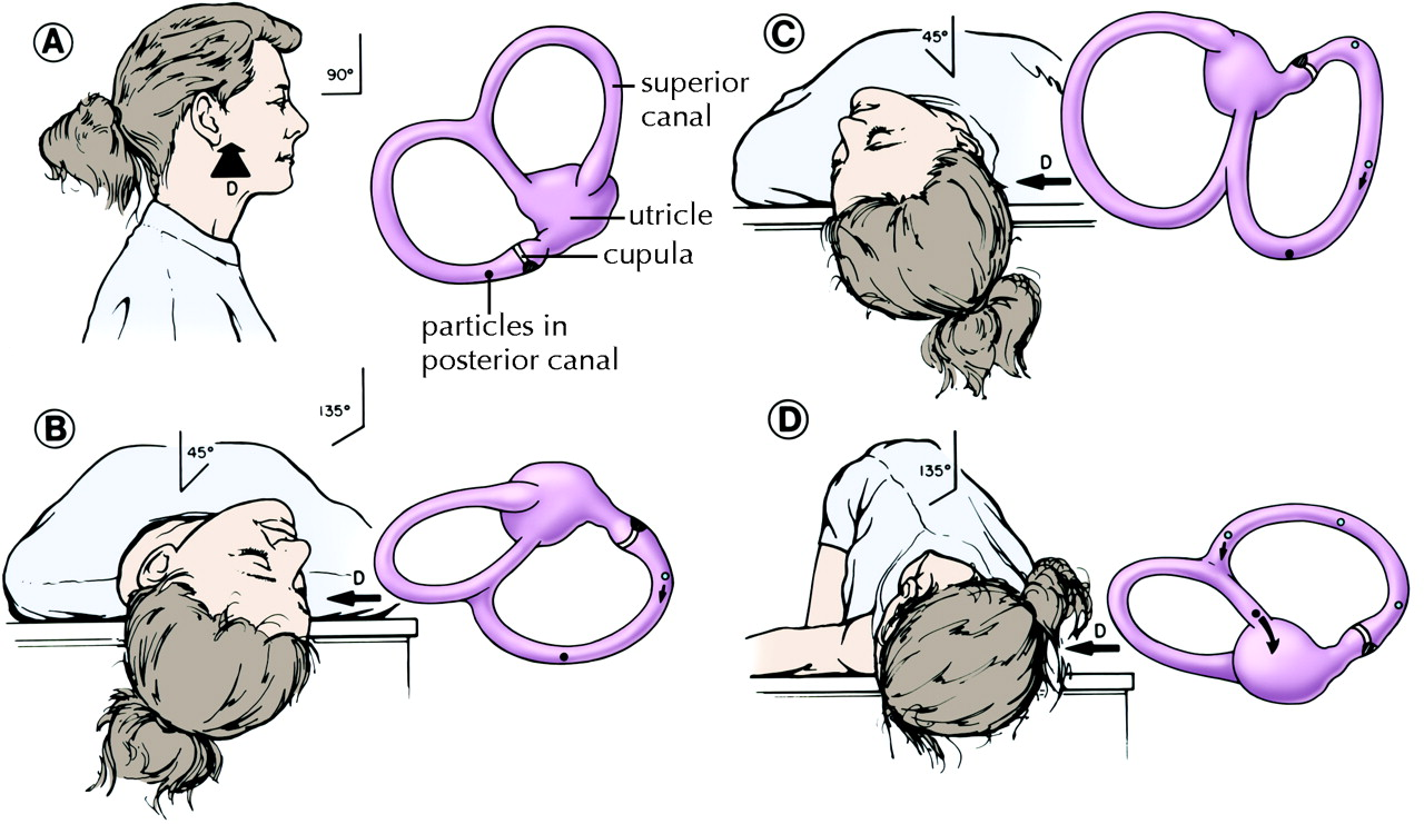 Diagnosis And Management Of Benign Paroxysmal Positional Vertigo