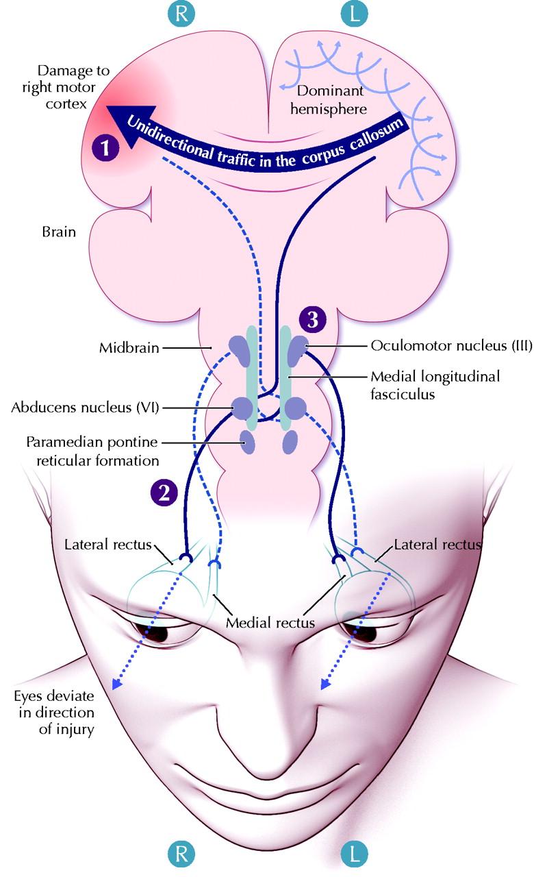 Right Cerebral Cortex The Right Motor Cortex is