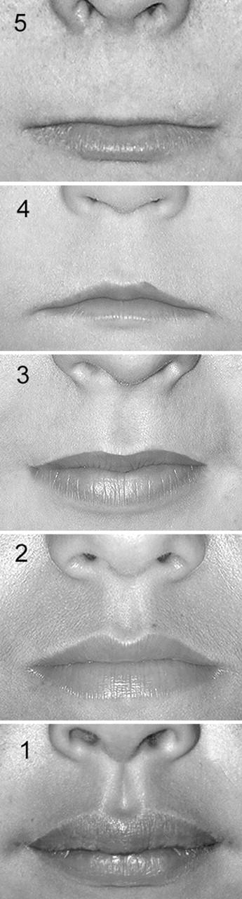 sillon naso labial
