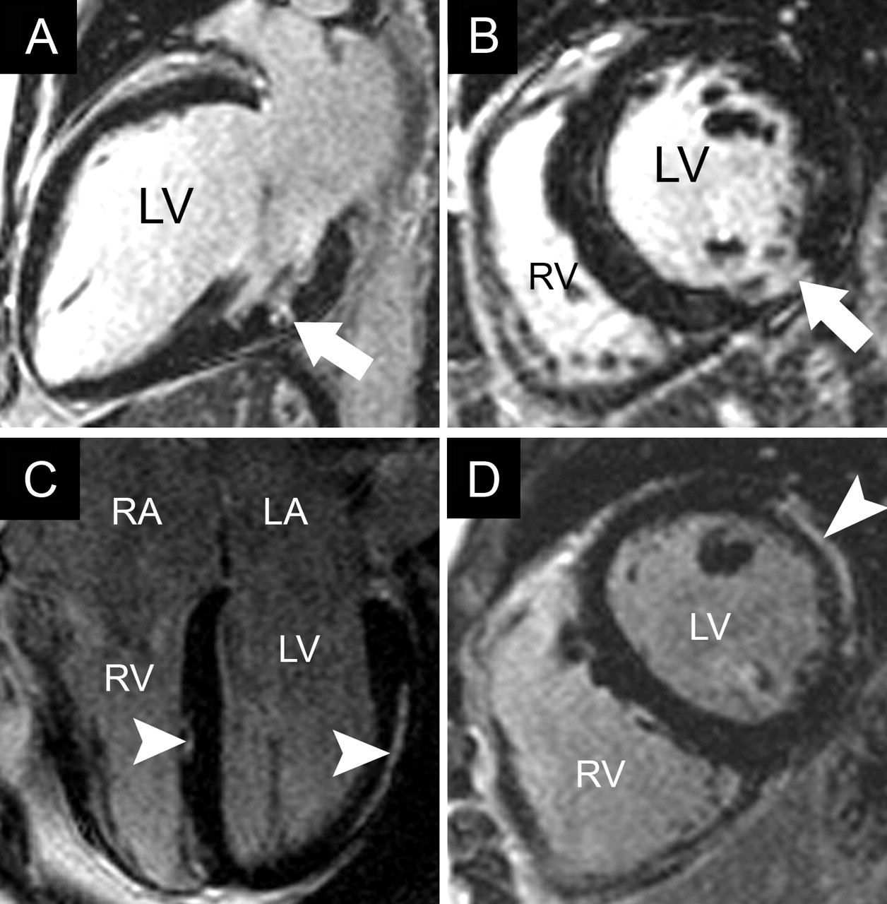 Clinical applications of cardiovascular magnetic resonance imaging ...