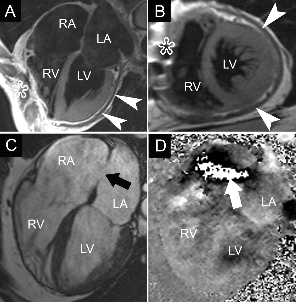 Clinical Applications Of Cardiovascular Magnetic Resonance Imaging
