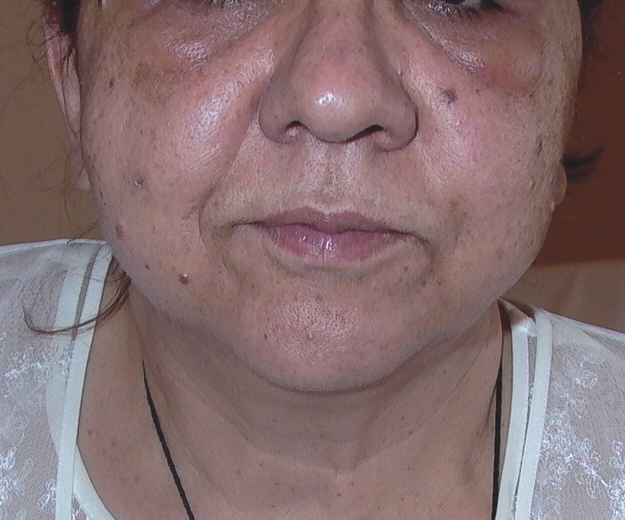 facial edema due to allergic reaction