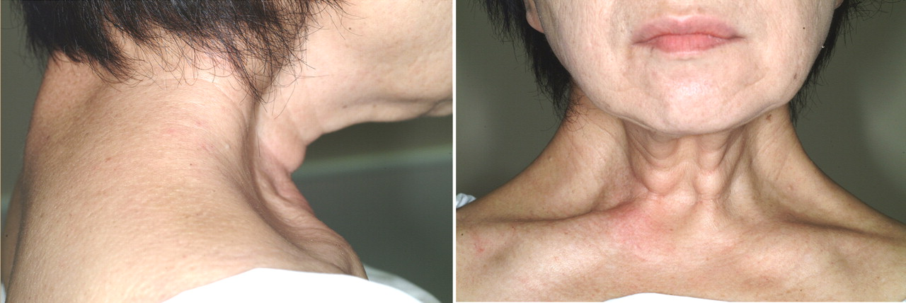 Bilateral Trapezius Hypertrophy With Dystonia And Atrophy Cmaj
