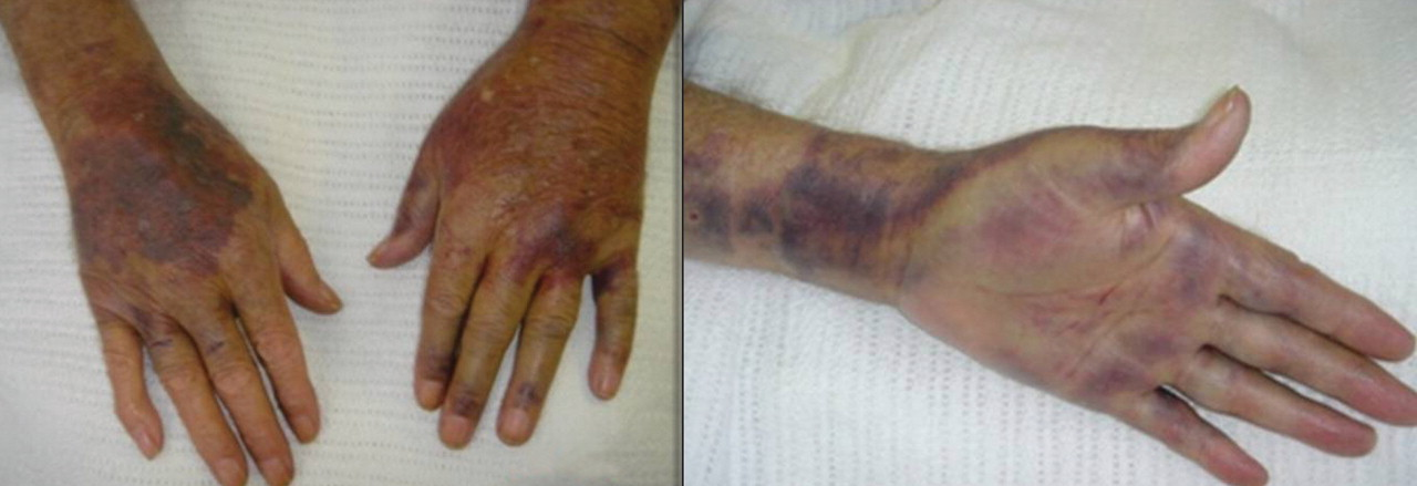 acquired hemophilia a presenting in an elderly man