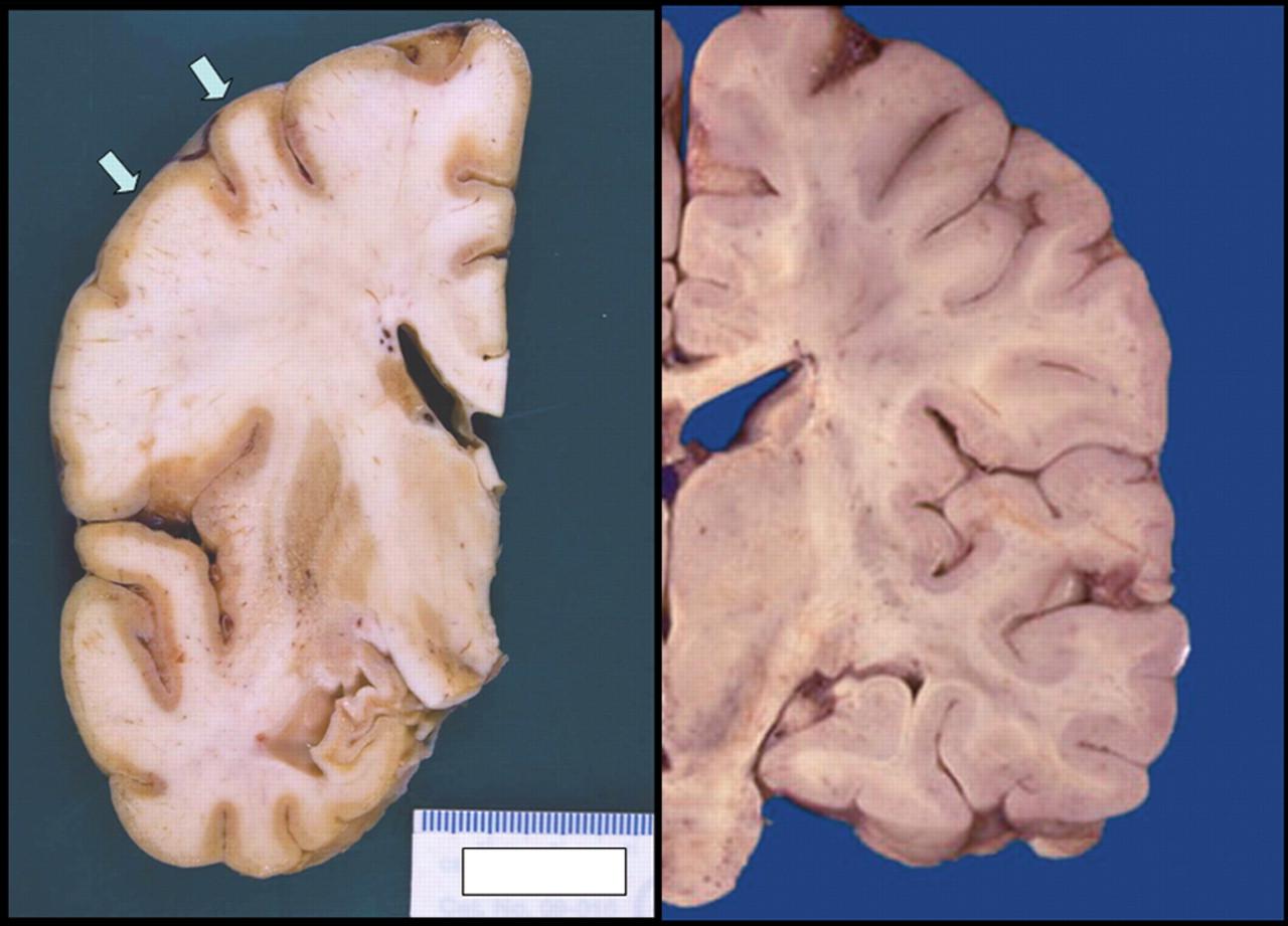 human rabies encephalitis following bat exposure  failure