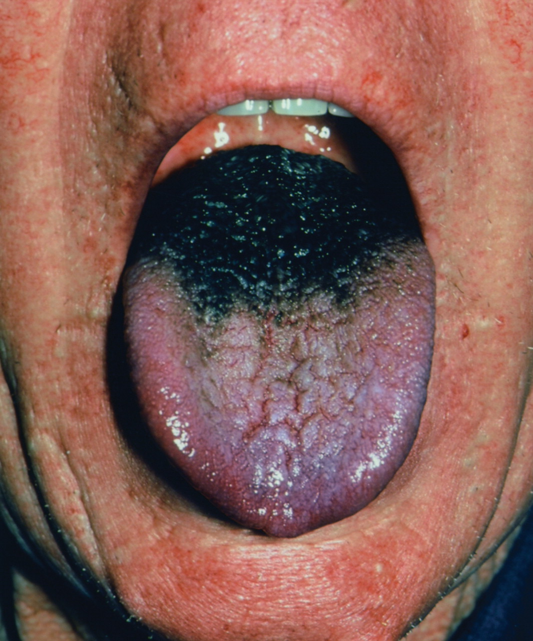 Black hairy tongue: What is your call? | CMAJ