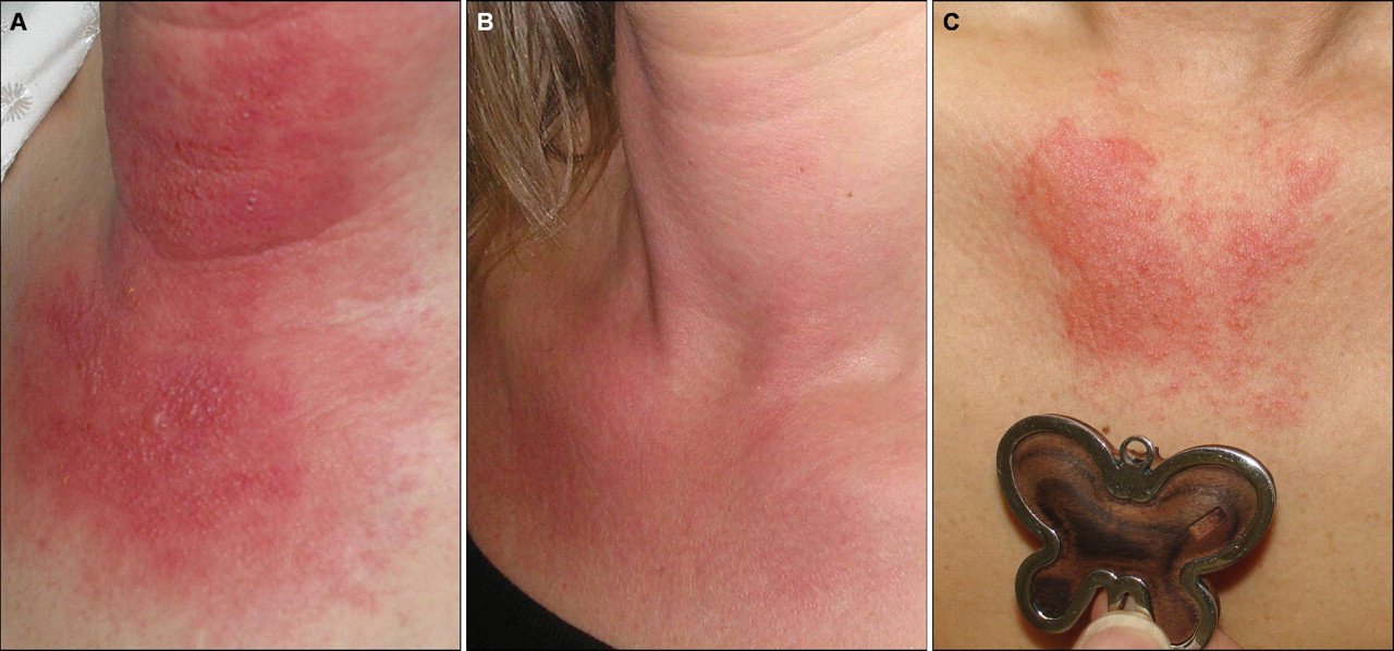 Patch Test Triggering Recurrence Of Distant Dermatitis