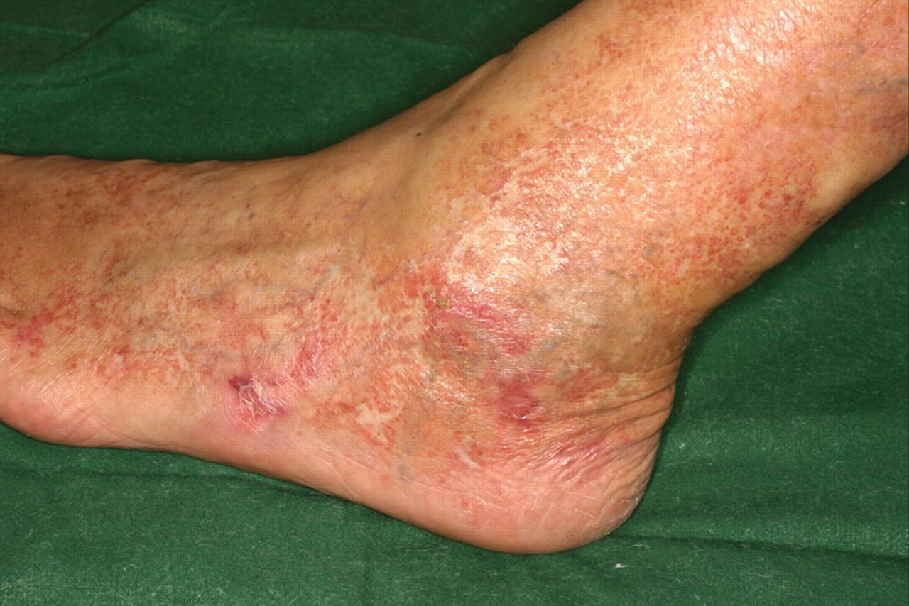 Hydroxyurea Induced Ulcers On The Leg Cmaj