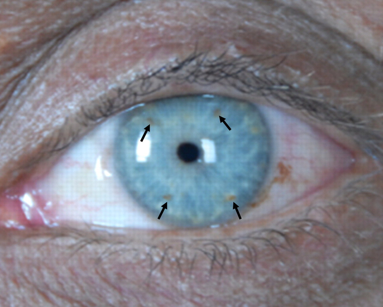 A patient with loss of vision in the right eye and ...