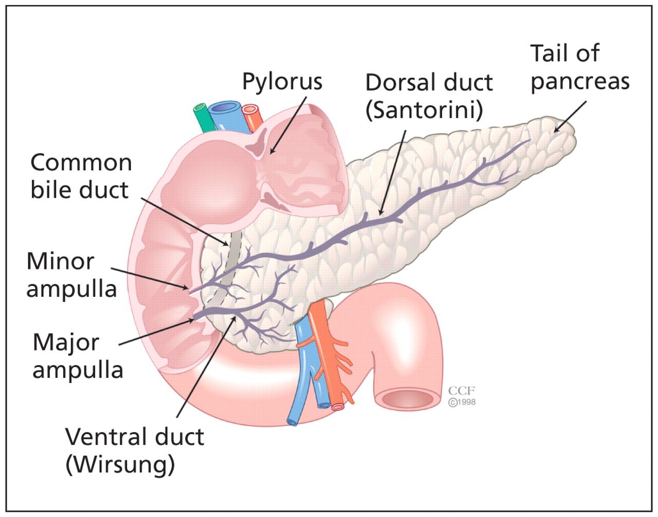 Pancreas divisum: a cause of idiopathic acute pancreatitis | CMAJ