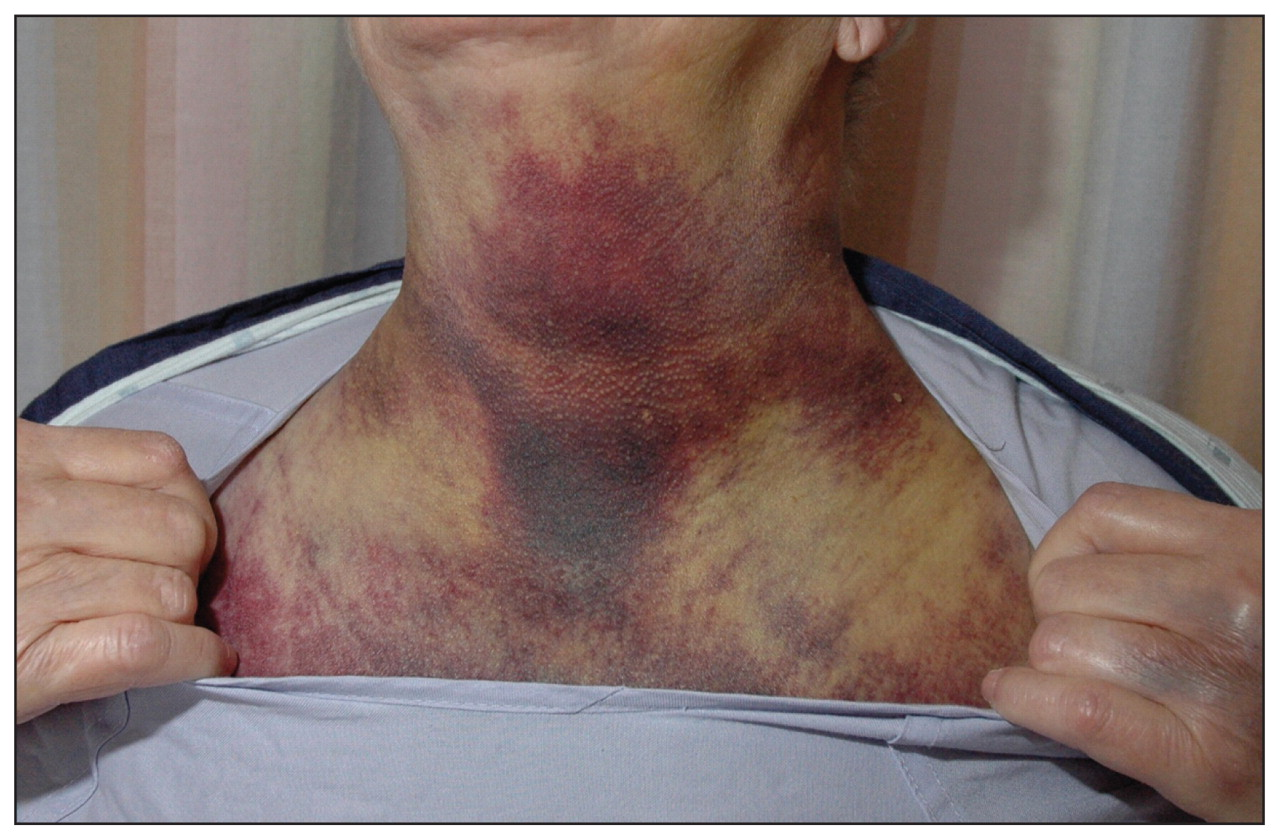 Spontaneous cervical hematoma associated with parathyroid adenoma | CMAJ