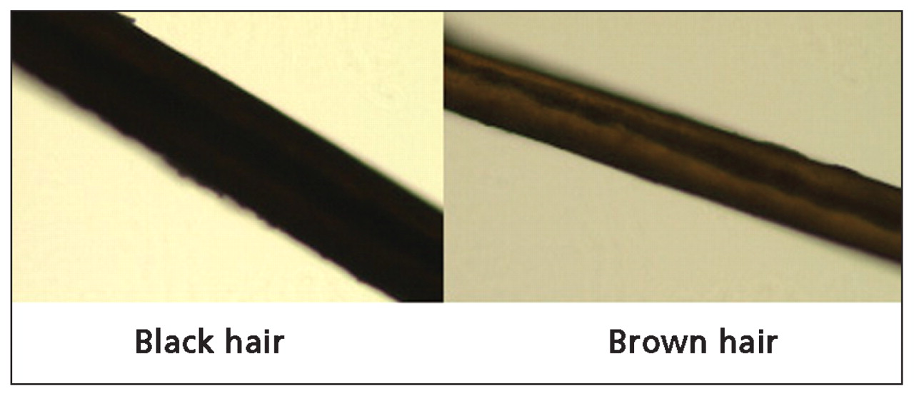 Heterochromia Of The Scalp Hair Cmaj