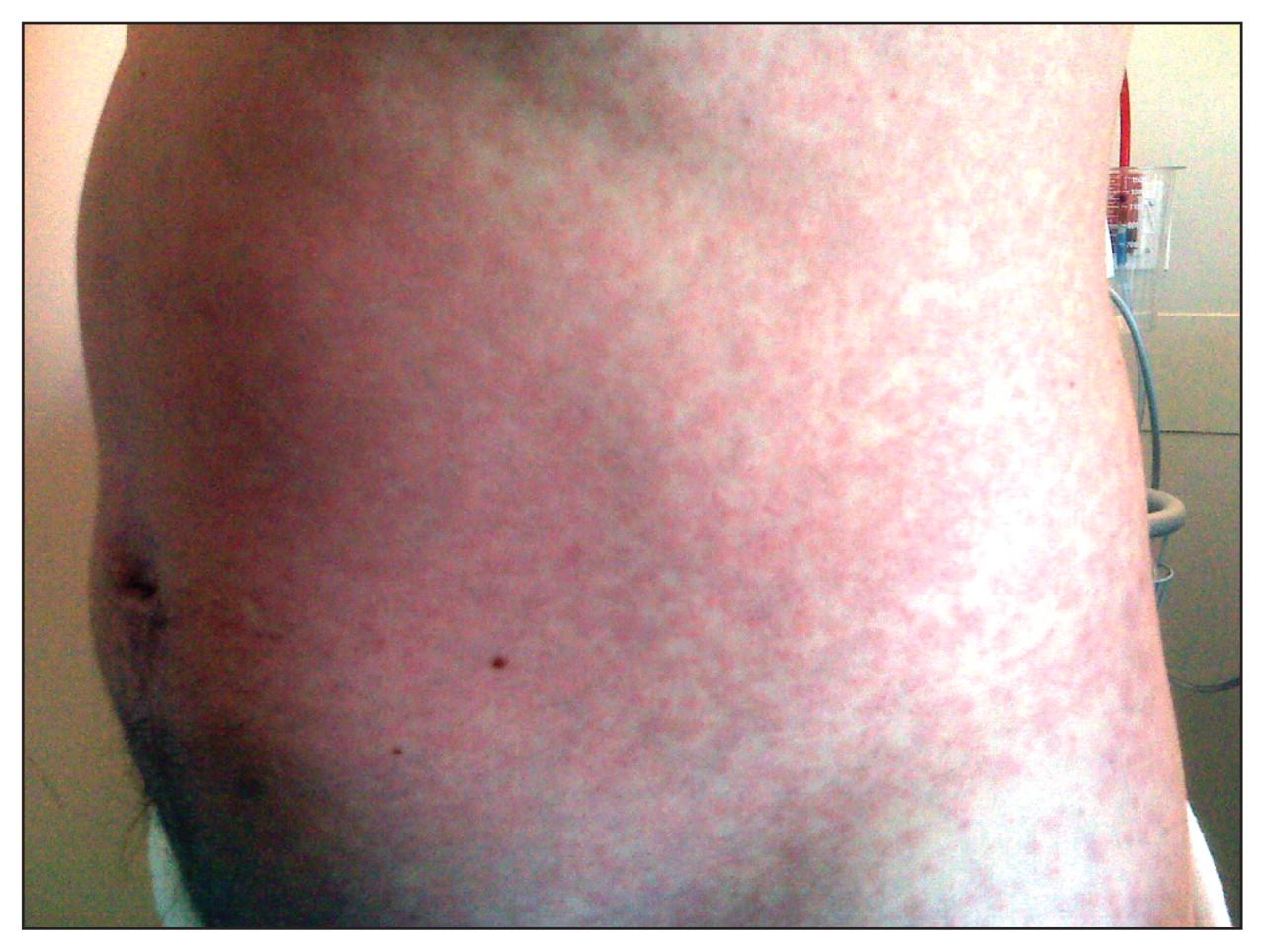 Rash associated    H1n1 Rash