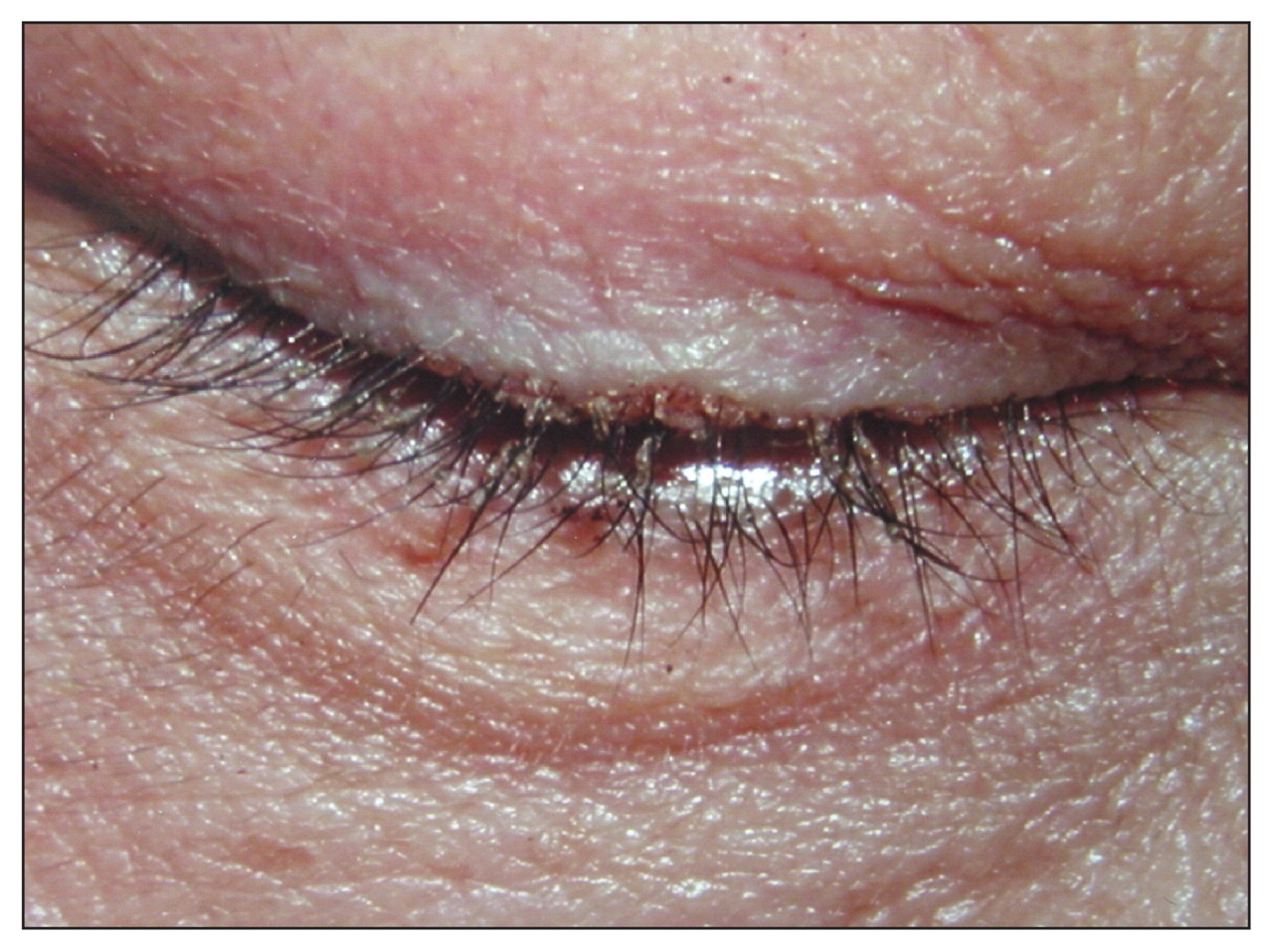 Infestation Of The Eyelashes With Phthirus Pubis Cmaj