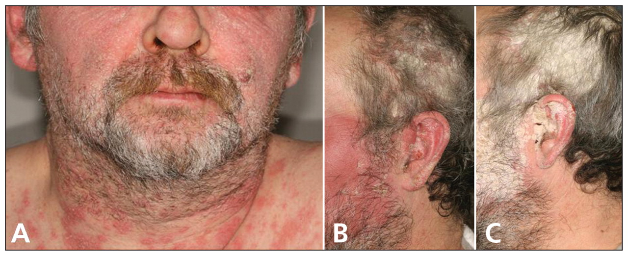 Usually, facial Psoriasis' symptoms ranges from mild to intense itch 3