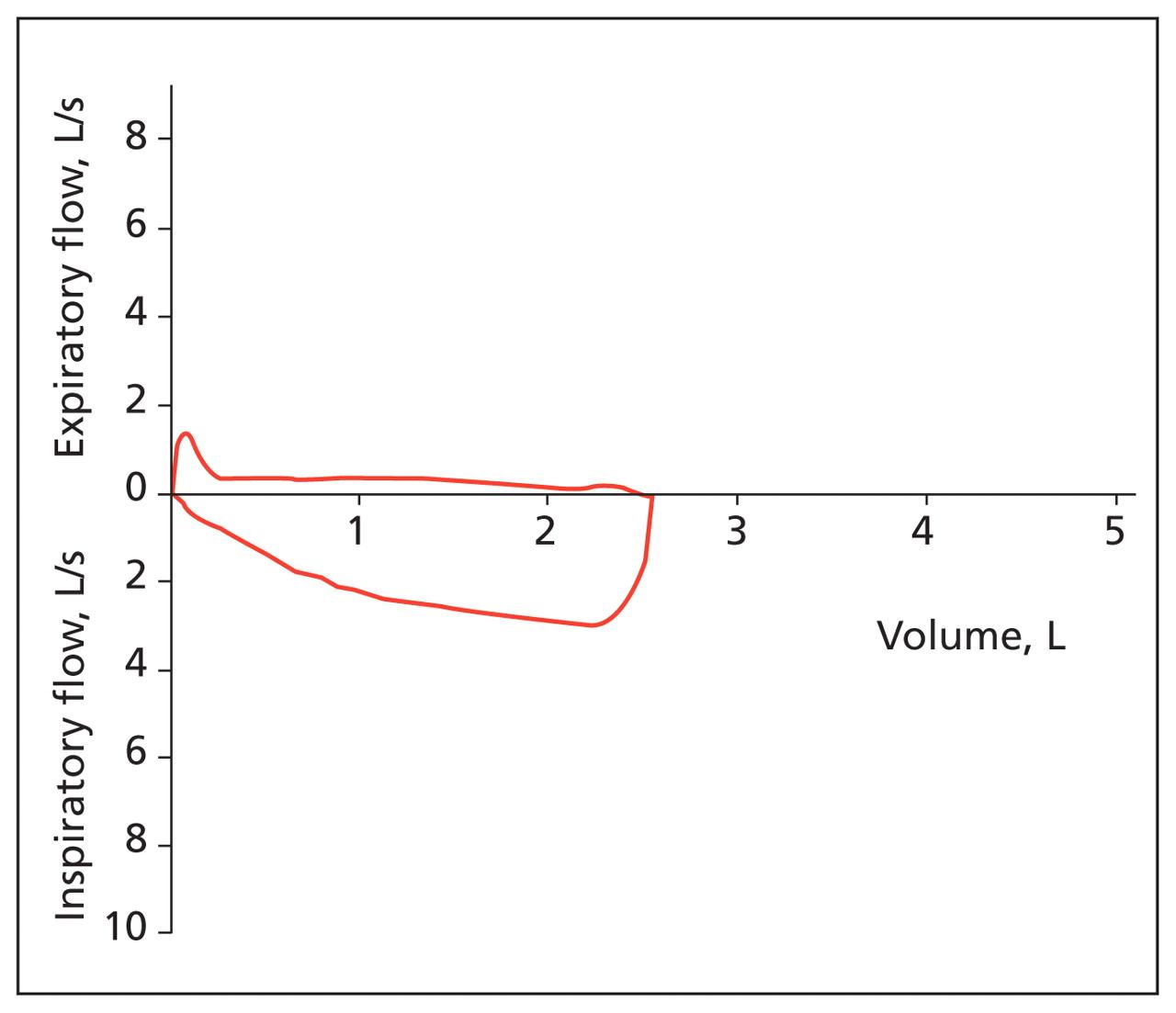 Shortness of breath, expiratory: reasons. Shortness of breath, inspiratory and expiratory