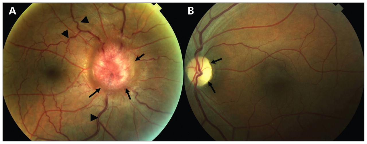Foster Kennedy Syndrome Papilledema In One Eye With Optic