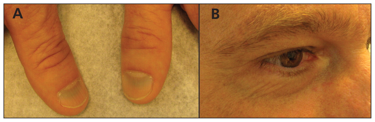Figure 1: | Discoloration of nail beds and skin from minocycline | CMAJ