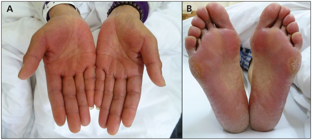 Hand Foot Syndrome Related To Chemotherapy Cmaj