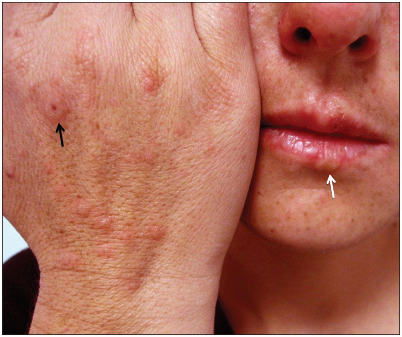 Erythema Multiforme Associated With Herpes Labialis Cmaj