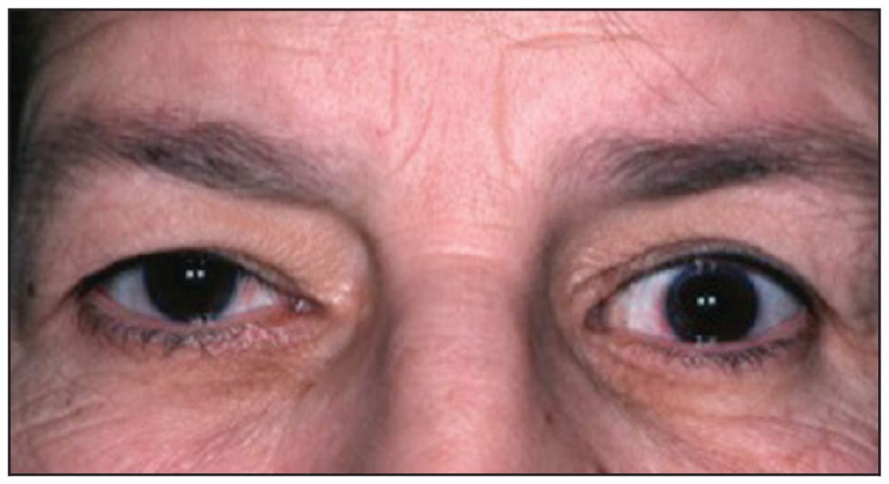 Thyroid Eye Disease Cmaj