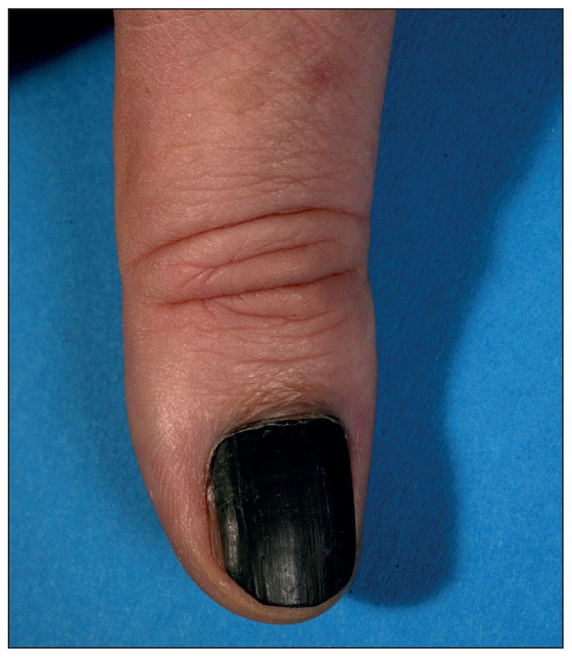 Subungual malignant melanoma | CMAJ