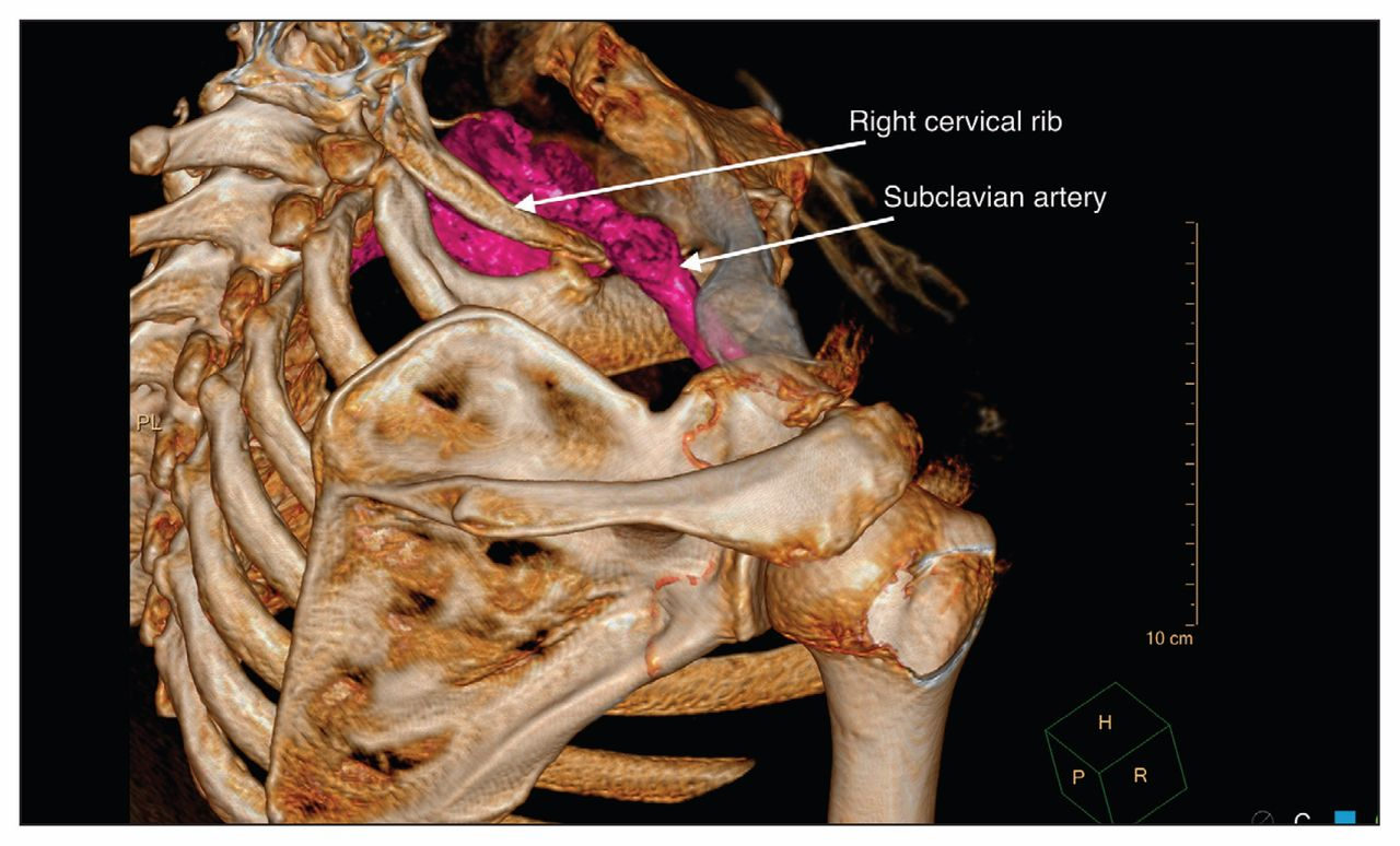 Thoracic outlet syndrome: a congenital case manifesting in middle ...