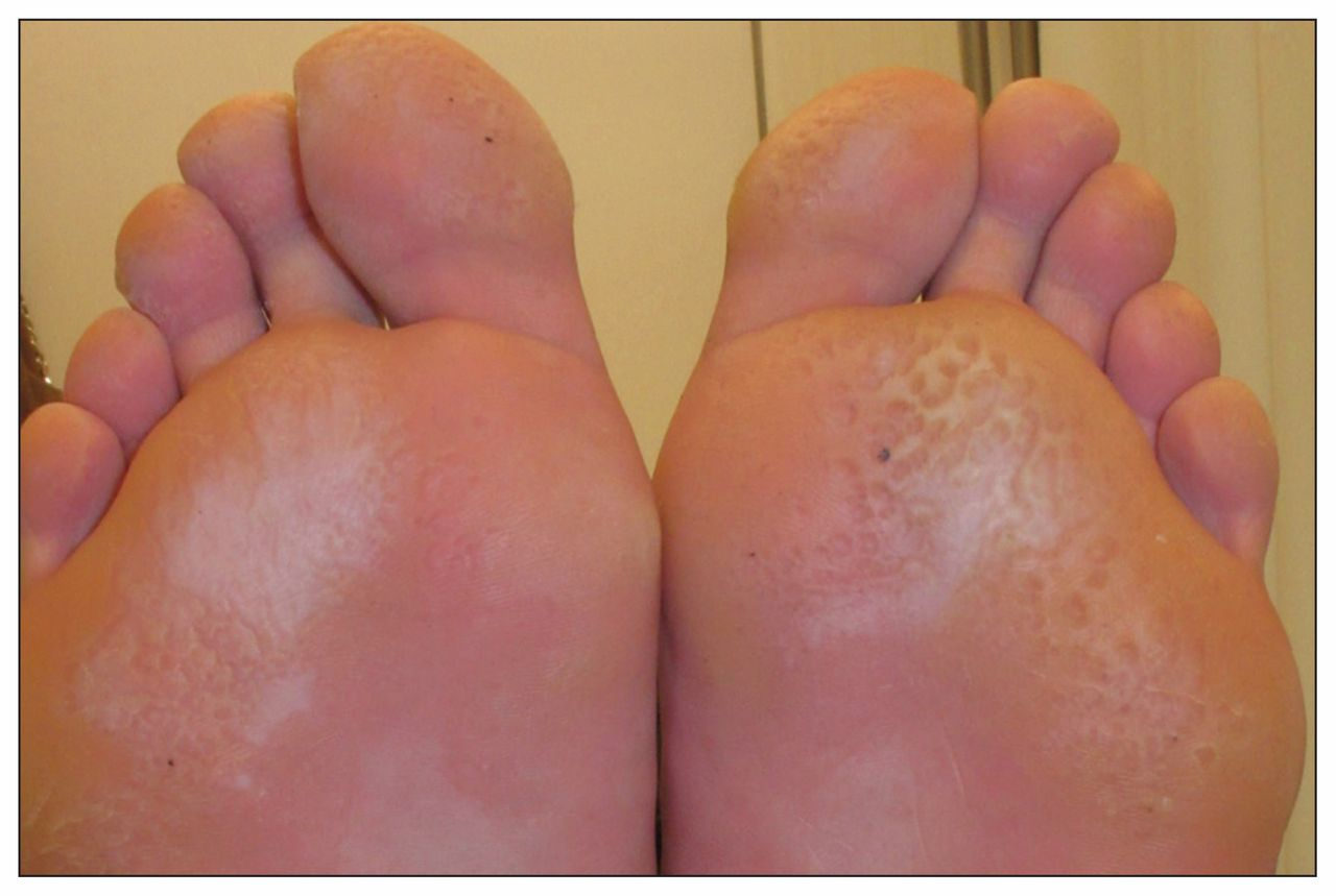 Pitted keratolysis: an infective cause of foot odour | CMAJ