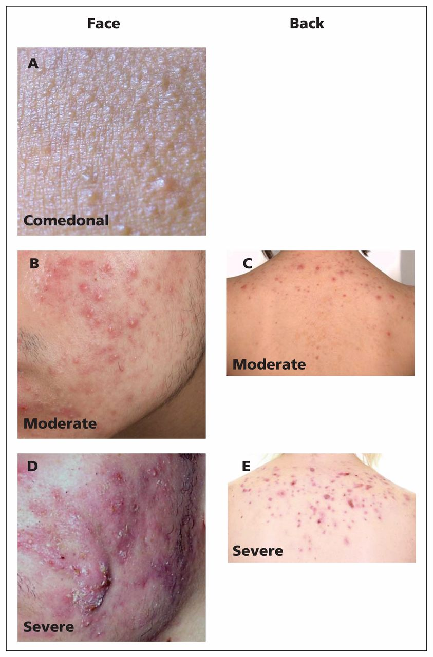Management Of Acne Canadian Clinical Practice Guideline Cmaj