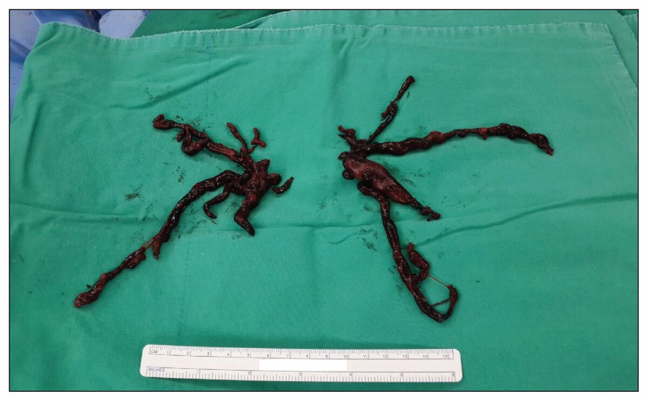 Embolectomy For Massive Pulmonary Embolism After Cesarean Delivery