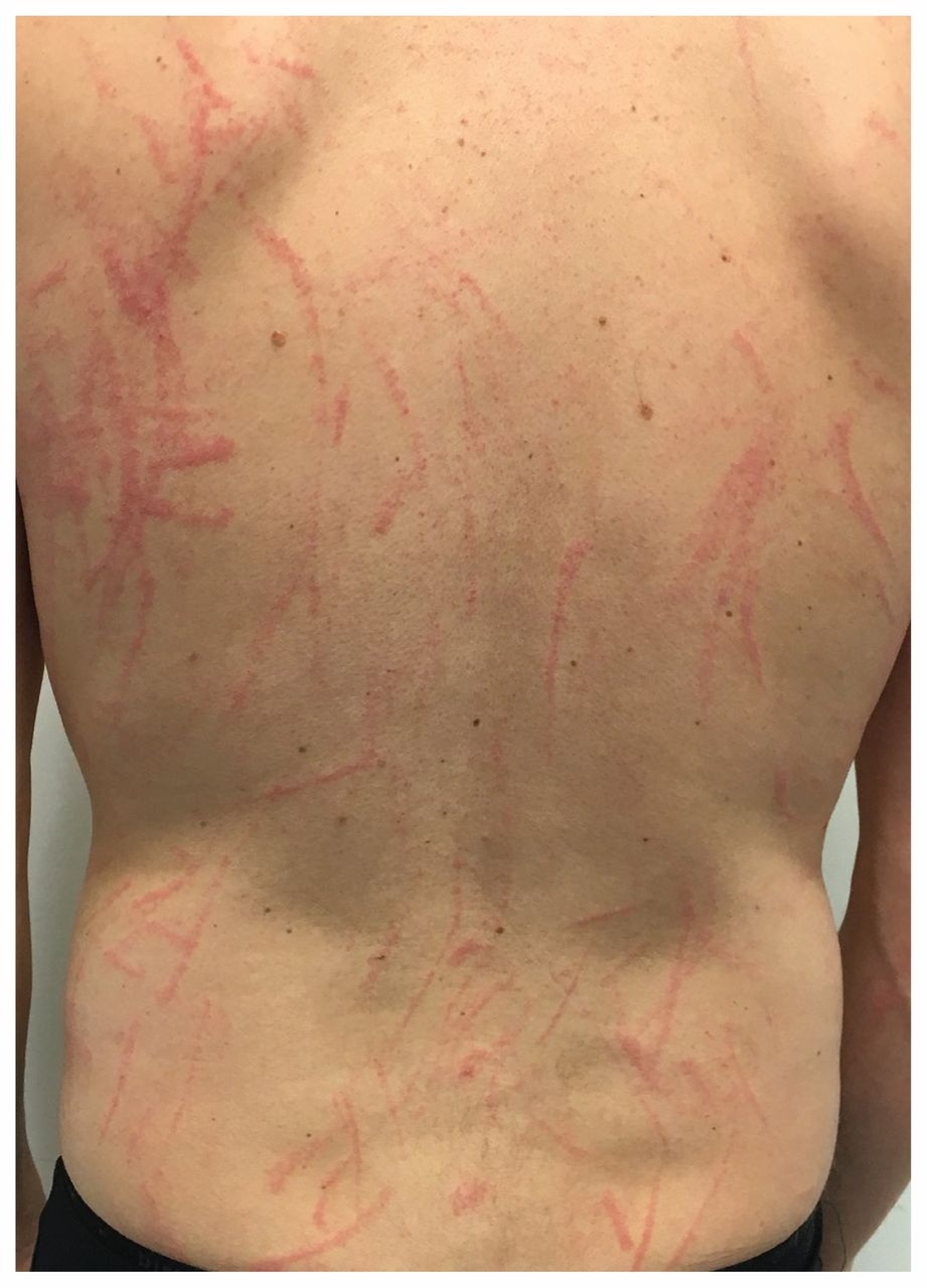 Shiitake dermatitis   CMAJ