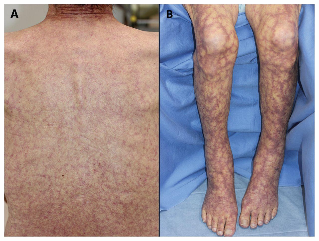 Cold agglutinin disease presenting as livedo racemosa | CMAJ