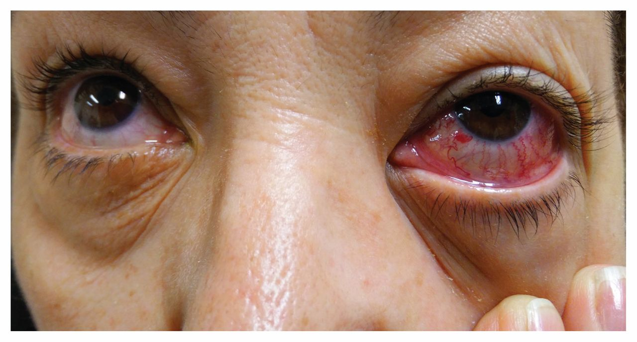 A Woman With A Red Eye From A Carotidcavernous Sinus Fistula Cmaj