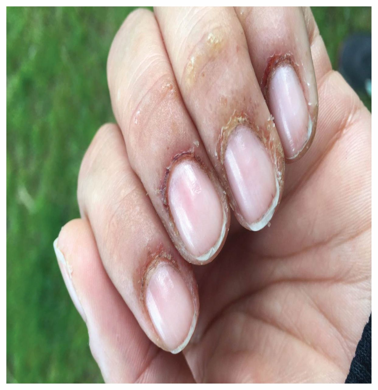 Contact dermatitis caused by methacrylates in nail products