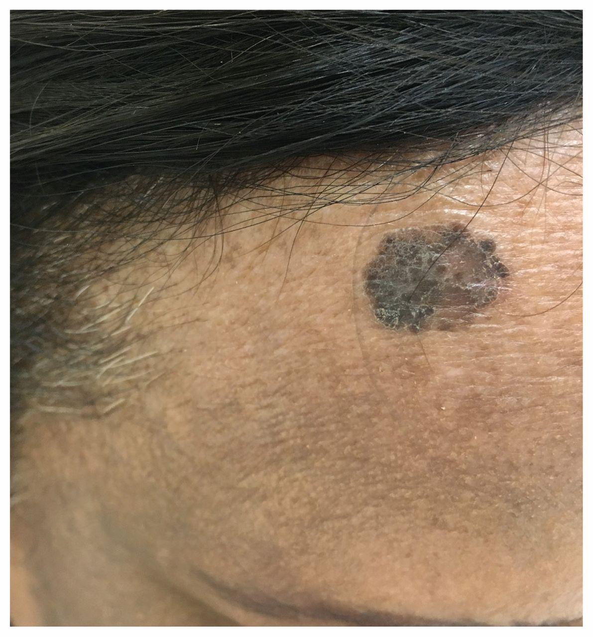 Pigmented Bowen Disease Cmaj
