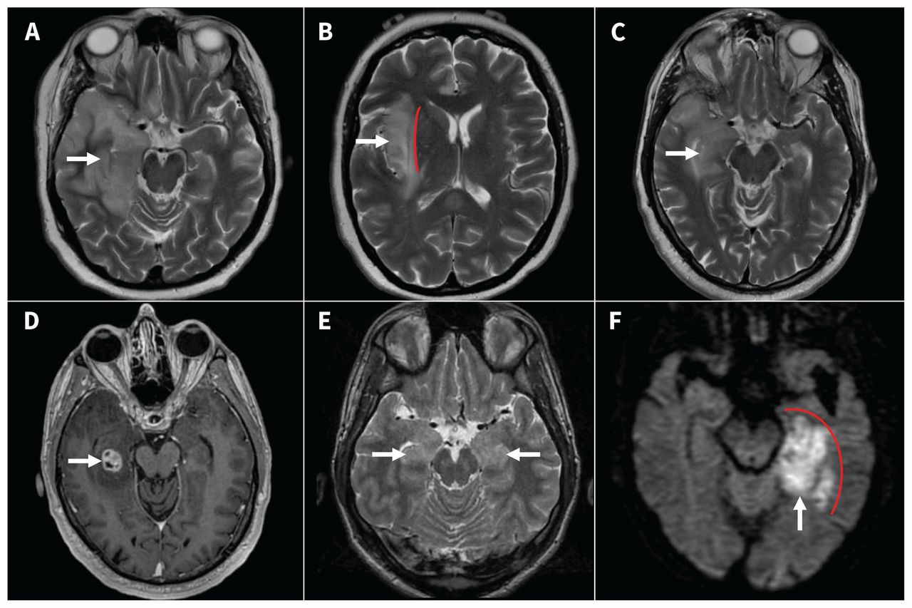 Diagnosing Autoimmune Limbic Encephalitis Cmaj