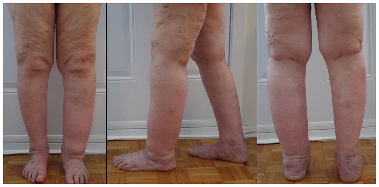 A 61 Year Old Woman With Chronic Leg Lymphedema Managed With Complete Decongestive Therapy Cmaj
