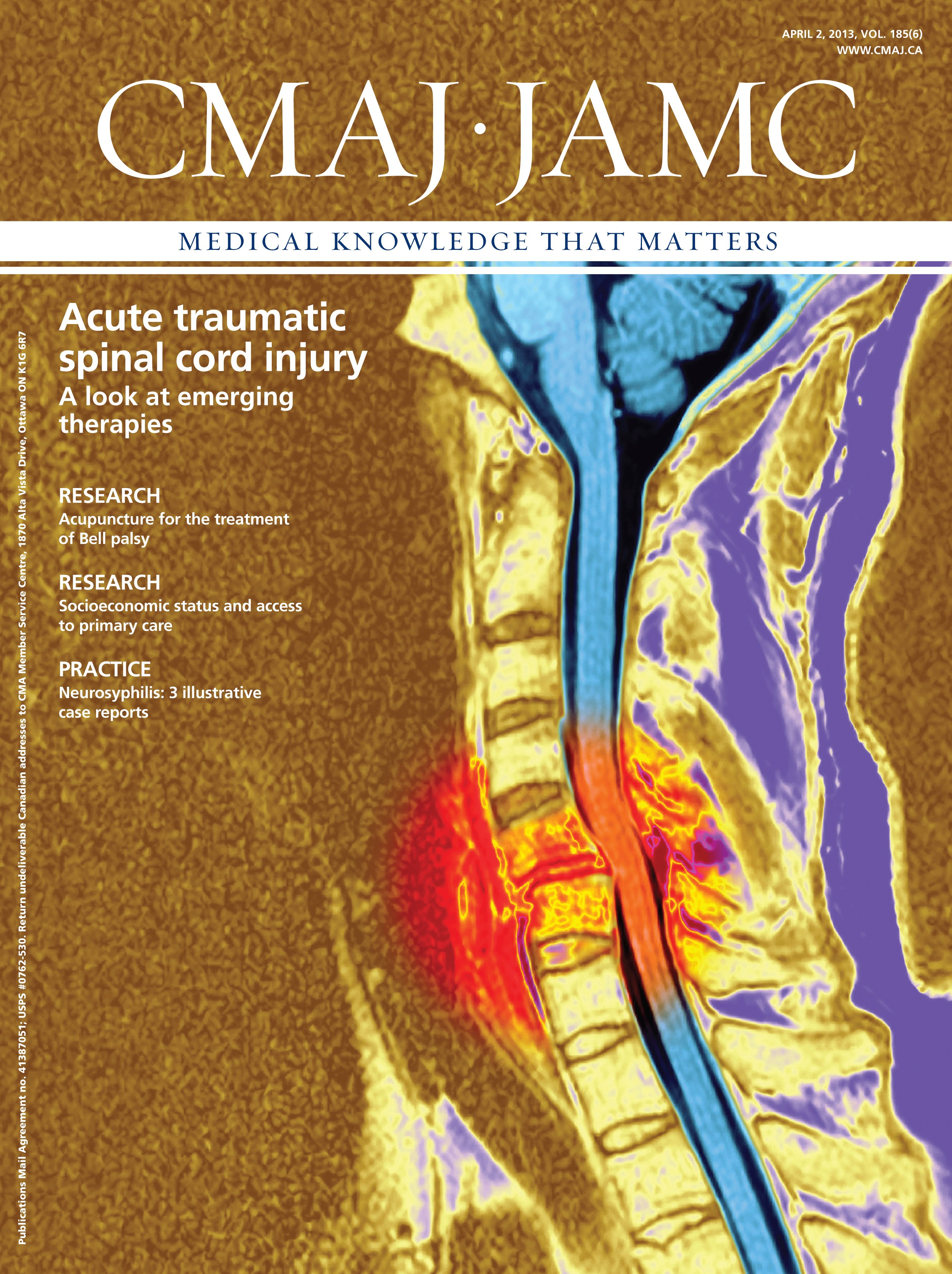 Emerging therapies for acute traumatic spinal cord injury | CMAJ