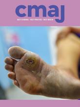 Canadian Medical Association Journal: 191 (35)
