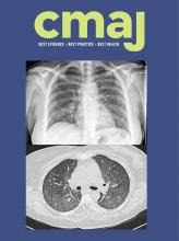 Canadian Medical Association Journal: 192 (39)